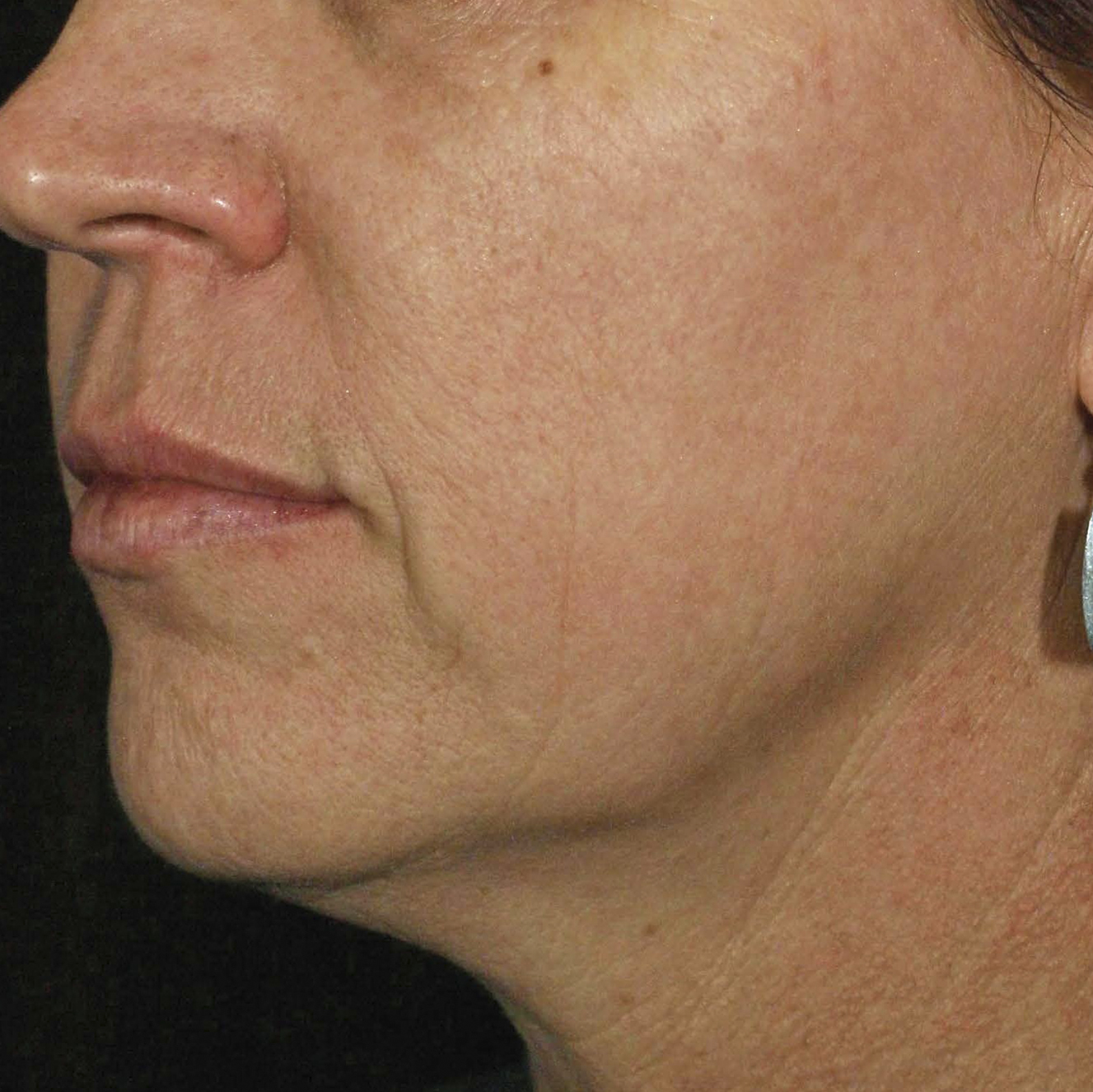 Skintyte After Treatment Image