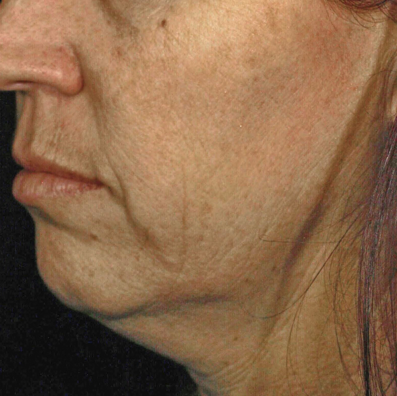 Skintyte Before Treatment Image